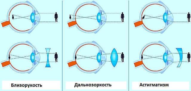 Очки для зрения при дальнозоркости: как правильно подобрать и носить?
