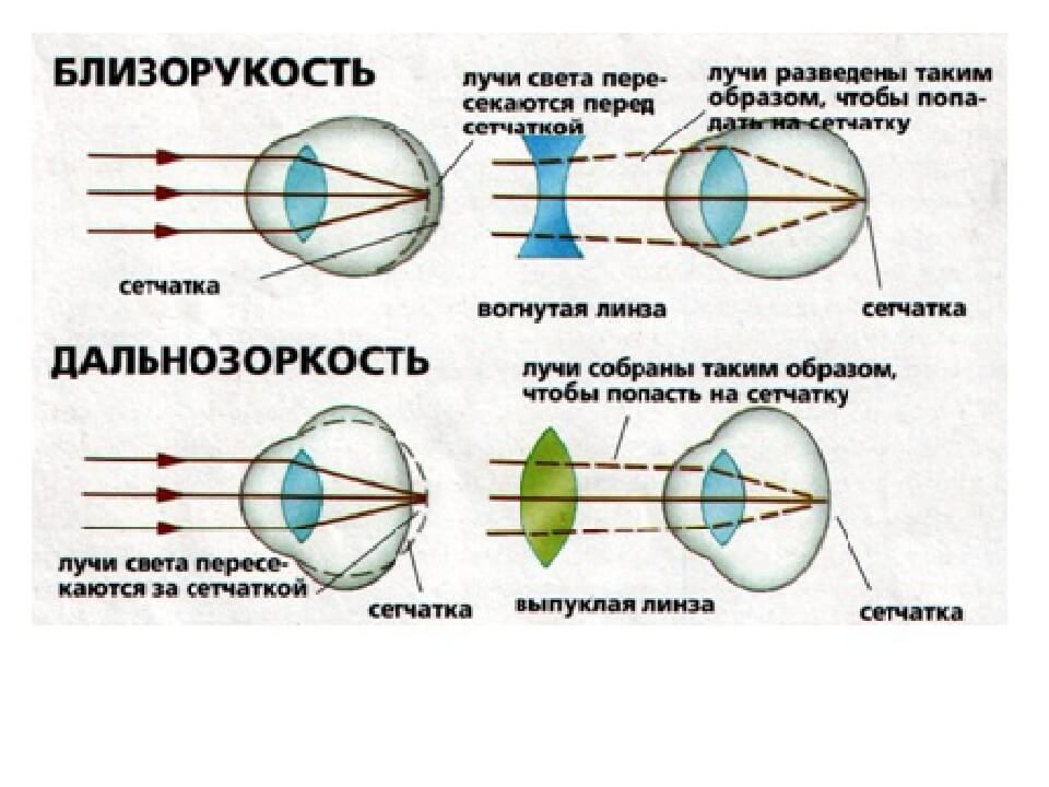 Уменьшении миопии с возрастом