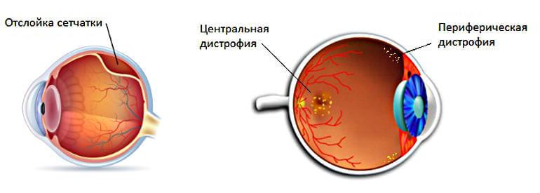 лазерная коагуляция сетчатки глаза при глаукоме осложнения