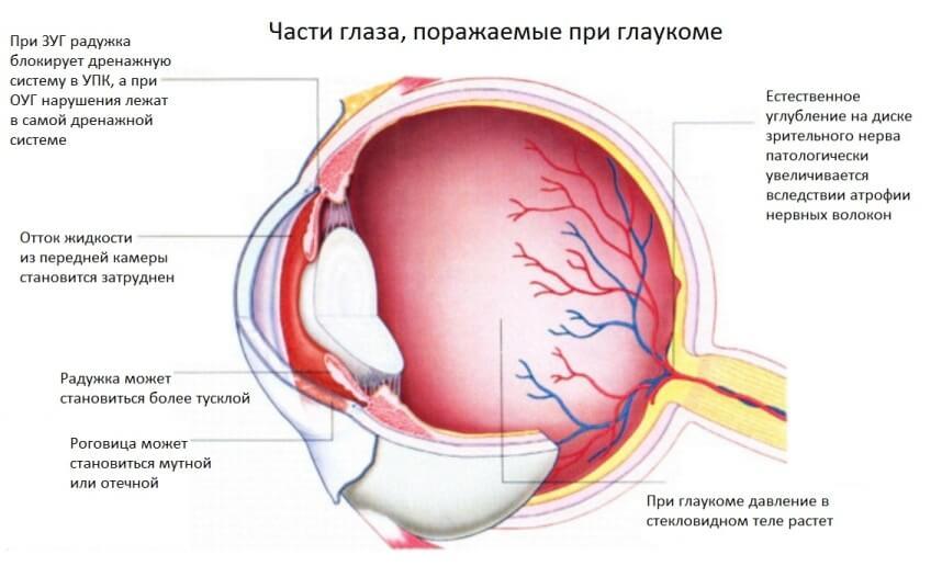 Как жить с глаукомой глаза Рекомендации пациенту