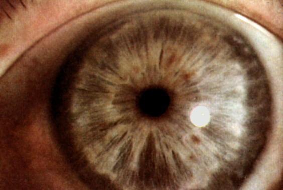 Противопоказания для операции глаукомы