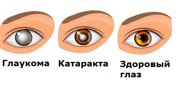 лечение глаукомы и катаракты