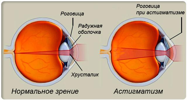 Симптомы астигматизма: как вовремя распознать и эффективно лечить?