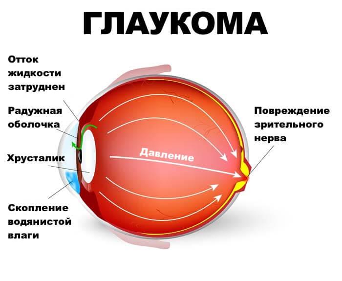 Что такое сгоревшая глаукома и из-за чего она возникает?