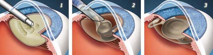Сколько нельзя пить после операции на глаза