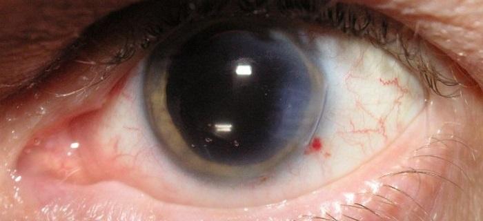 Катаракта при близорукости: необходима ли операция при повреждении ...