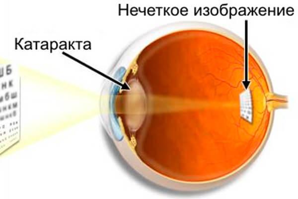 Сенильная катаракта: как проявляется и как вылечить?