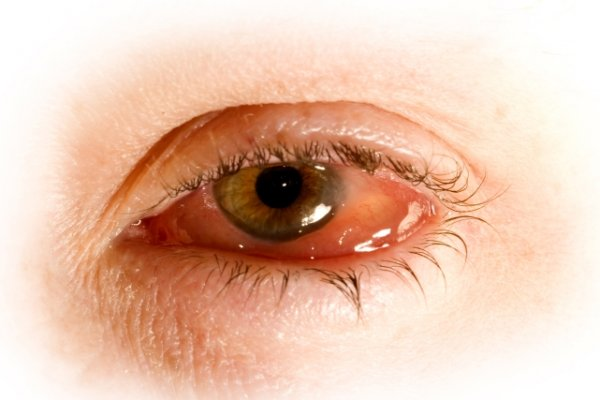 Чем лечить вирусный конъюнктивит у взрослых капли глазные