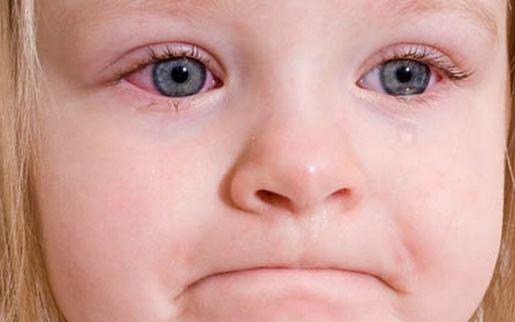Ацикловир при конъюнктивите: схема применения для детей и взрослых
