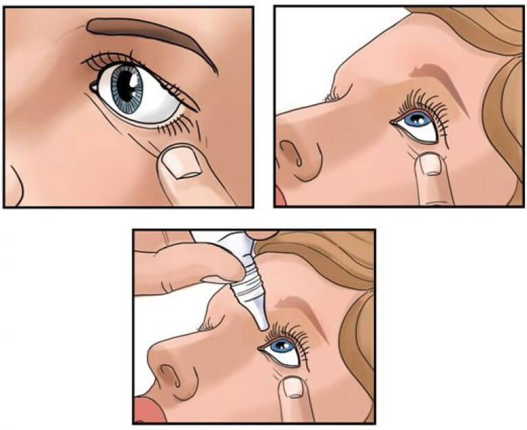 Капли для глаз при ношении контактных линз