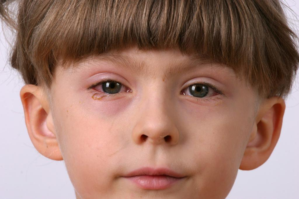 Демодекозный блефарит у детей