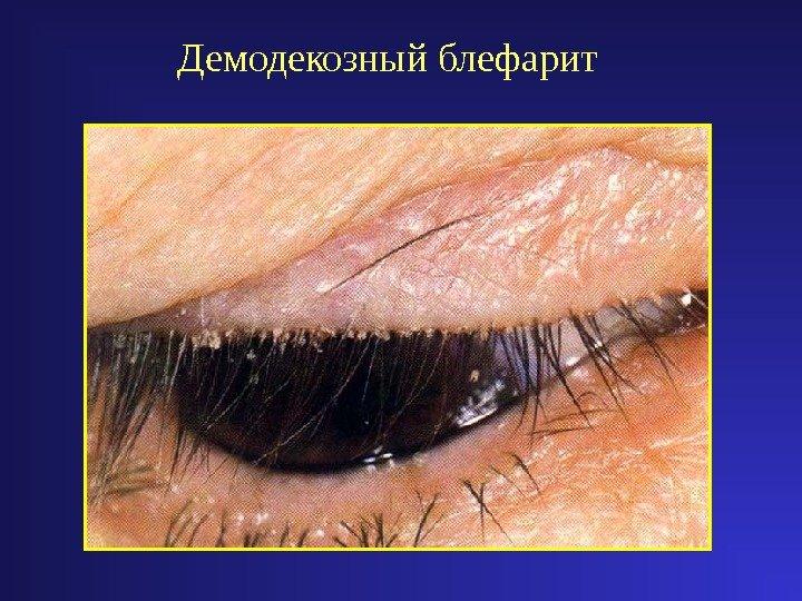 демодекозный блефарит