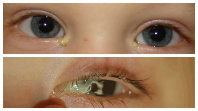 Гнойный конъюктивит у детей: как правильно промывать глаза?