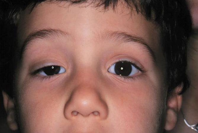 Конъюнктивит у новорожденного чем лечить комаровский