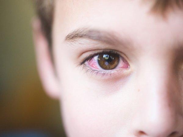 Лечение конъюктивита у детей: чем и как лечить?