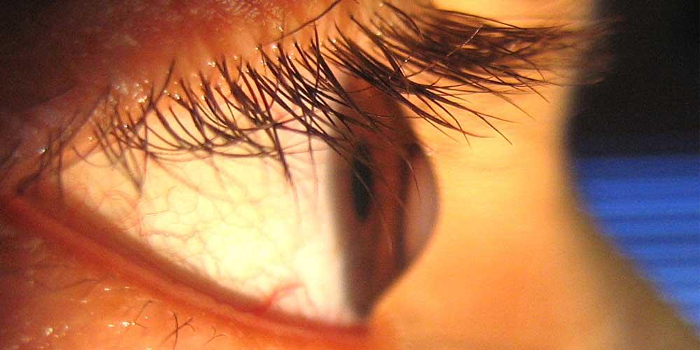 Глазные капли при кератоконусе