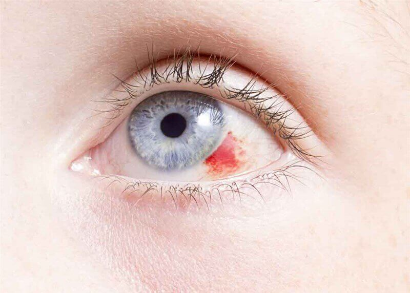 пелена перед глазами причины лечение