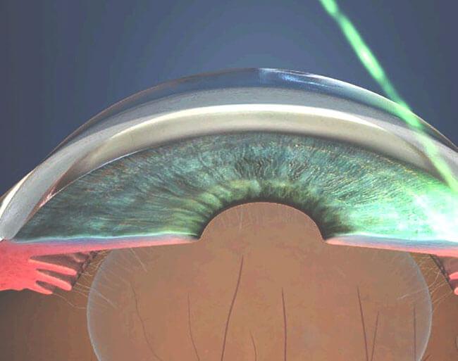 Симптомы и лечение остроугольной глаукомы
