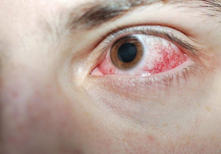 Чем вылечить глаза от сварки в домашних условиях 250